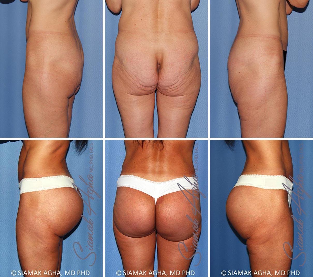 Brazilian Butt Lift Before and After Set 2