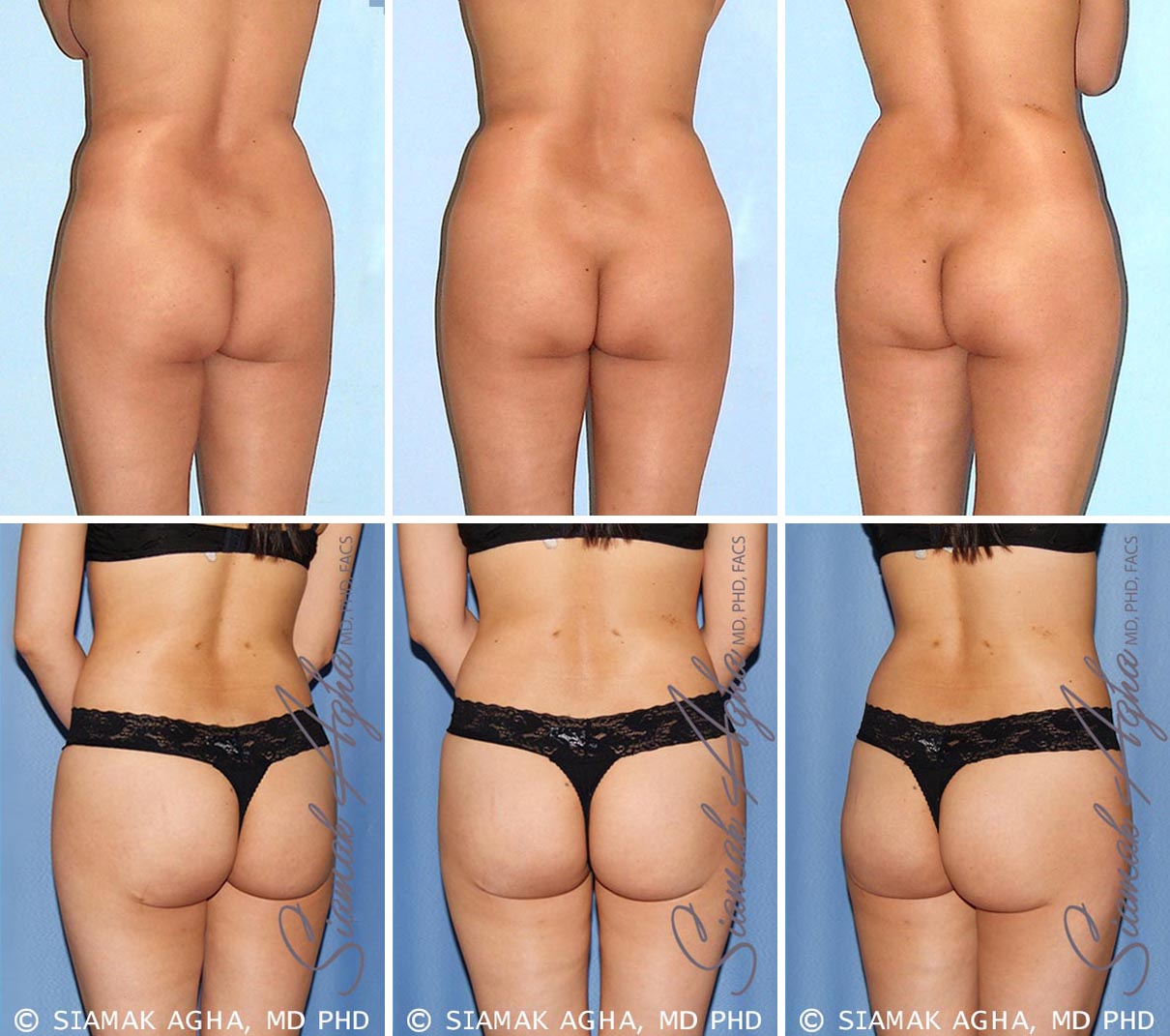 Brazilian Butt Lift Before and After Set 3