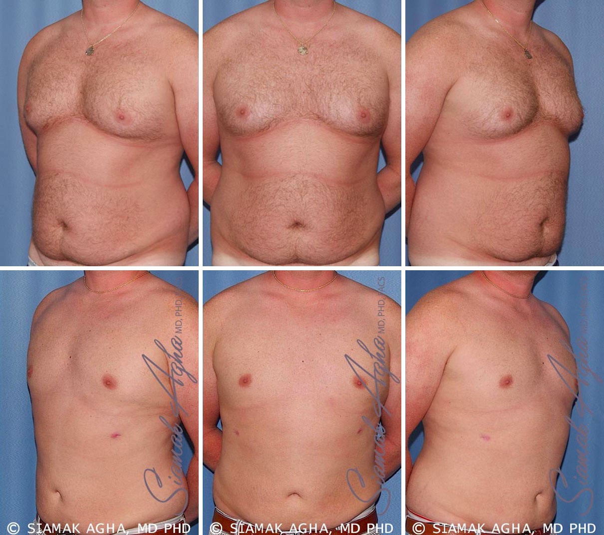 Liposuction Before and After Set 1