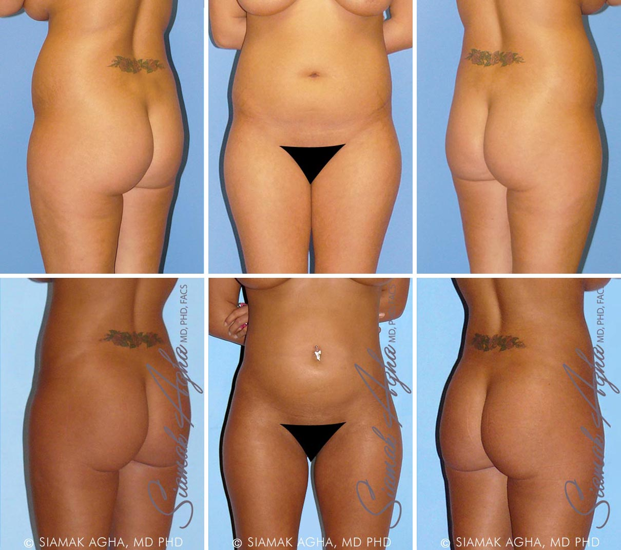 Liposuction Before and After Set 2