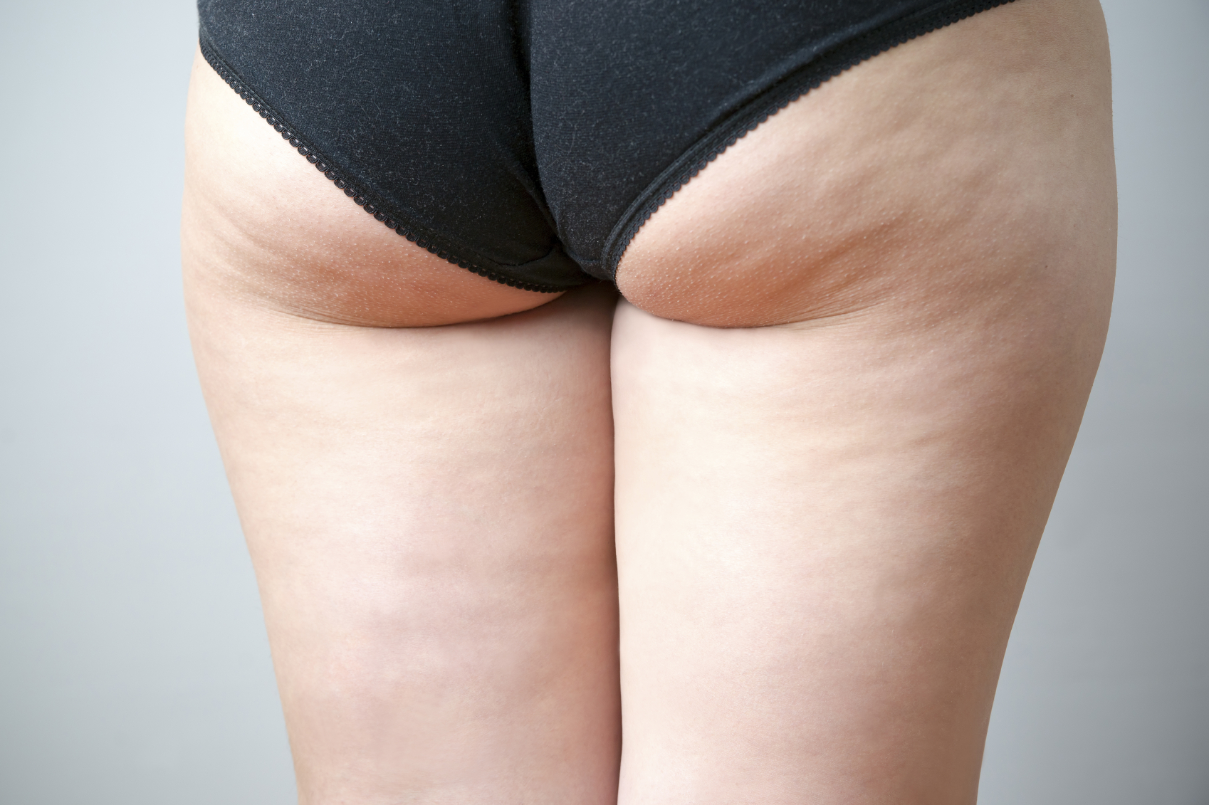 Three Types Of Buttock Enhancements And Contouring Surgeries