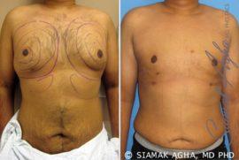 Orange County Liposuction Patient 1