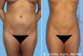 Orange County Liposuction Patient 2