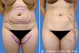 Orange County Liposuction Patient 5