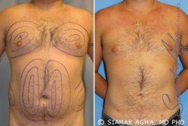 Orange County Liposuction Patient 6