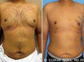 Orange County Gynecomastia Patient 4