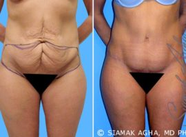 Orange County Tummy Tuck Patient 3