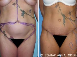 Orange County Tummy Tuck Patient 6