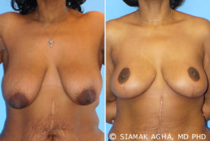 Breast Lift Before and After Patient 1