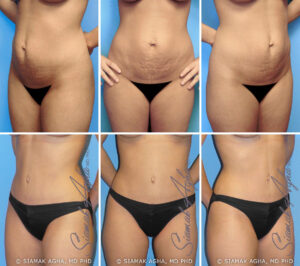 Tummy Tuck Before and After Set 1