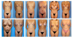 Mommy Makeover Gallery Images